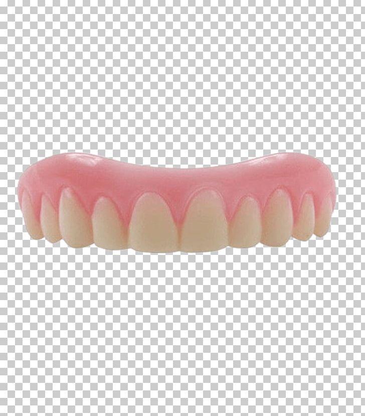 Human Tooth Dentures Veneer Dentistry PNG, Clipart, Cosmetic Dentistry, Dental Braces, Dental Implants, Dentist, Dentistry Free PNG Download