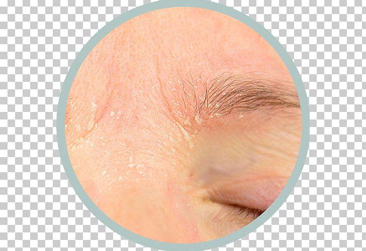 Seborrheic Dermatitis Cutaneous Condition Itch Skin PNG