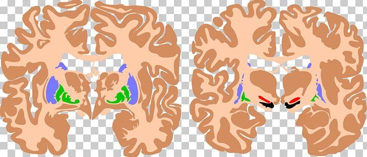 Basal Ganglia Brain Athetoid Cerebral Palsy Cerebral Cortex PNG, Clipart, Agy, Ataxic Cerebral Palsy, Basal Ganglia, Brain, Brainstem Free PNG Download