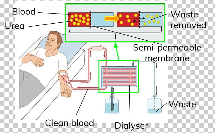 Hemodialysis Patient DaVita PNG, Clipart, Angle, Area