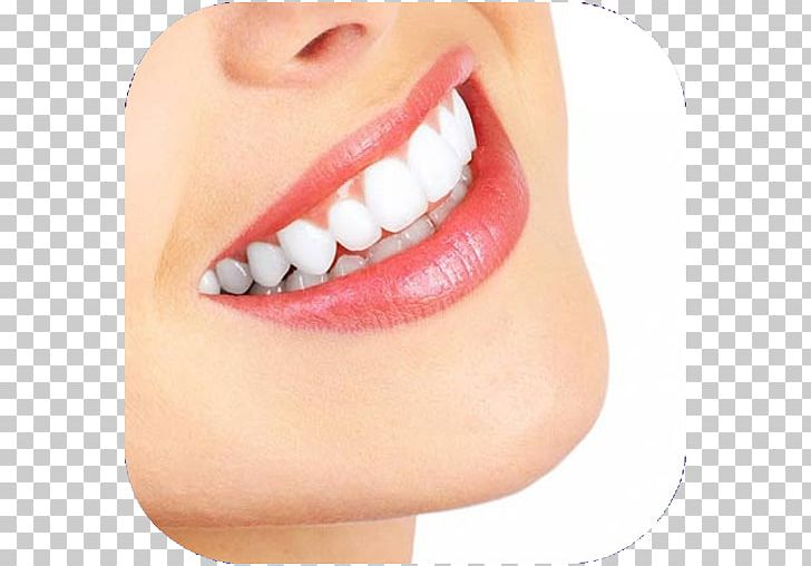 Cosmetic Dentistry Dental Implant Oral Hygiene Png Clipart Chin Clinic Dental Calculus Dentist Dentistry Free Png