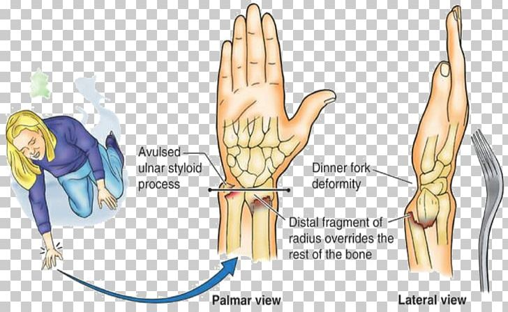 Colles' Fracture Distal Radius Fracture Smith's Fracture