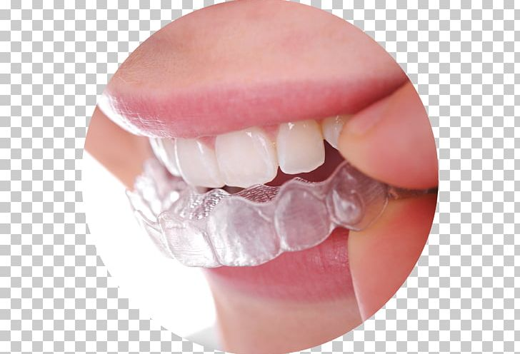 Clear Aligners Dental Braces Dentistry Orthodontics Retainer PNG, Clipart, Clear Aligners, Cosmetic Dentistry, Crown, Dental Braces, Dental Implant Free PNG Download