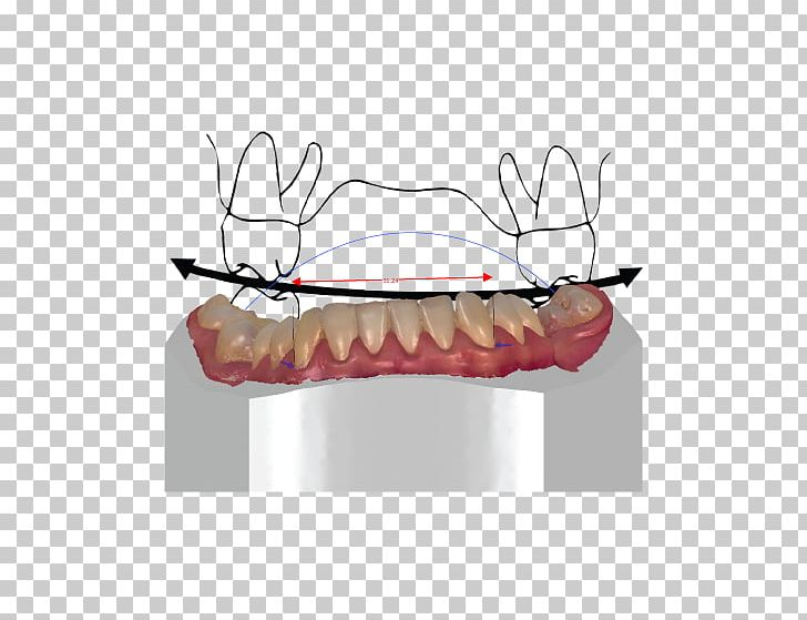 Orthodontics Tooth CAD/CAM Dentistry Orthodontic Technology PNG