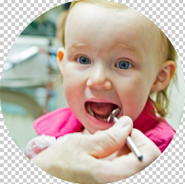 Pediatric Dentistry Pediatrics Dental College PNG, Clipart, Cheek, Child, Cosmetic Dentistry, Dental College, Dental Degree Free PNG Download