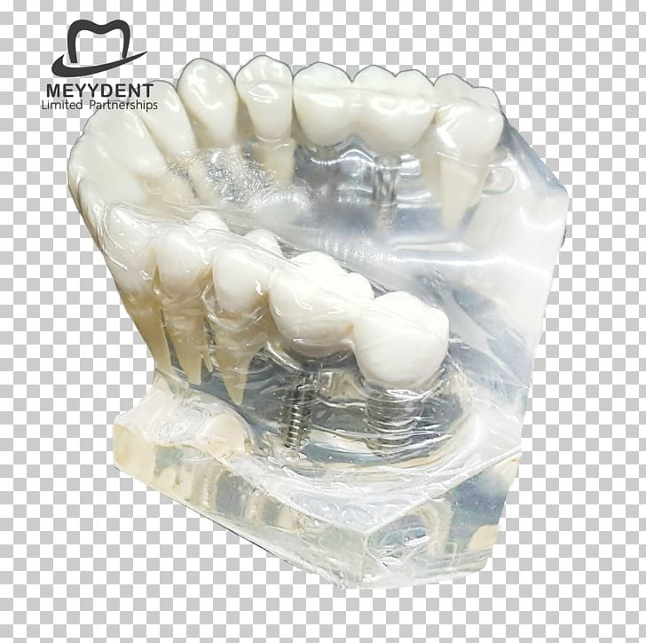Human Tooth Dental Laboratory หจก.เมย์เด้นท์ Jaw PNG, Clipart, Dental Laboratory, Dental Model, Dentistry, Email, Gmail Free PNG Download