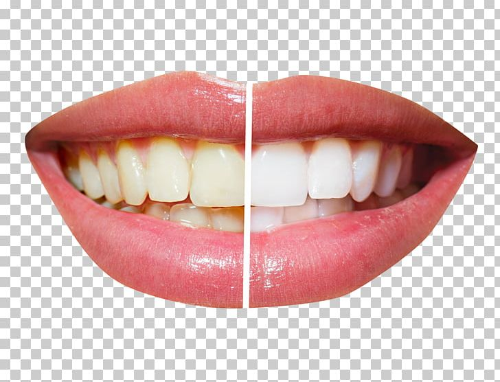 Cosmetic Dentistry Tooth Whitening PNG, Clipart, Clear Aligners, Crown, Dental, Dental Implant, Dental Restoration Free PNG Download