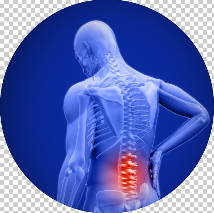 Low Back Pain Cody B Doyle Png Clipart 100 Natural Ache Acute Disease Back Back Pain