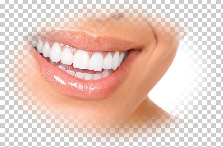 Dentures Dentistry Gums Dental Implant PNG, Clipart, Cheek
