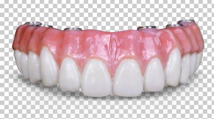 Dental Implant Crown Dentures Bridge Dentistry PNG, Clipart