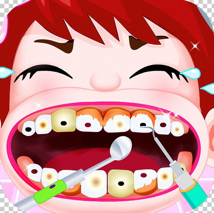 Tooth Decay Child Human Tooth Deciduous Teeth PNG, Clipart, Chang, Cheek, Child, Crazy, Cuisine Free PNG Download
