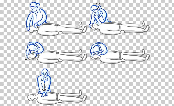 Body Jewellery Angle Car PNG, Clipart, Angle, Area, Arm, Auto Part, Basic Life Support Free PNG Download