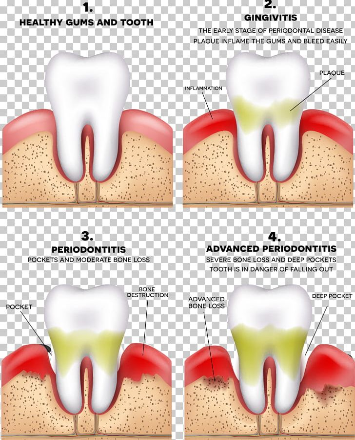 Periodontitis Disease Gums Periodontology Dentistry PNG, Clipart, Baby Teeth, Bad, Bad Boy, Bad Teeth, Bleeding On Probing Free PNG Download