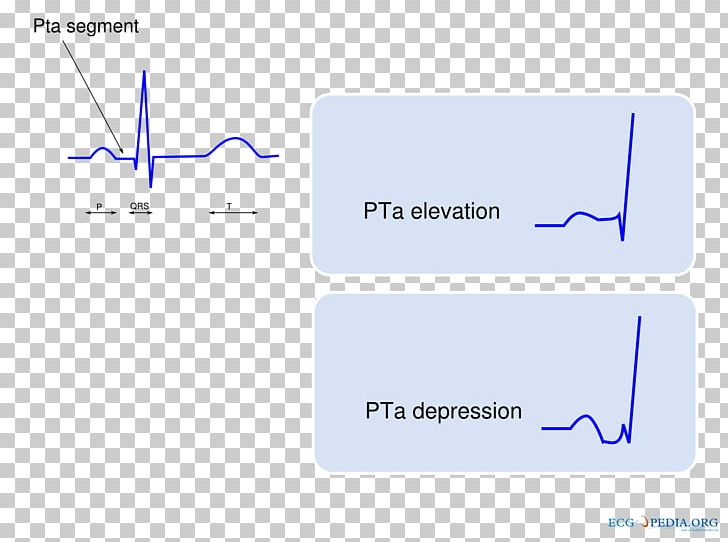 P Wave Electrocardiogram Electrocardiography QRS Complex