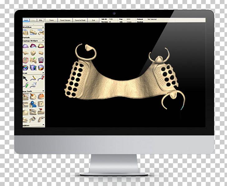 CAD/CAM Dentistry Removable Partial Denture Dentures Dental
