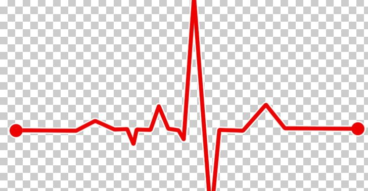 Heart Rate Monitor Pulse Electrocardiography PNG, Clipart