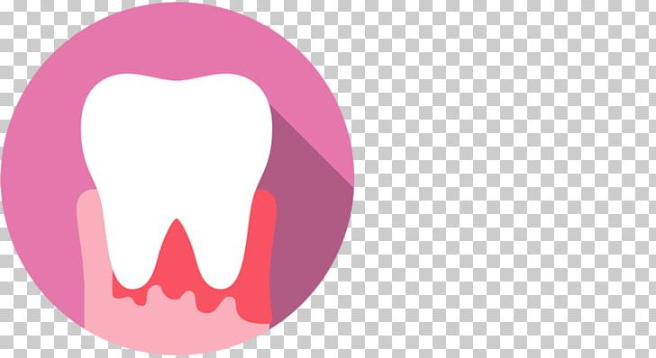 Human Tooth Mouth Gums Dentist PNG, Clipart, Bleeding, Computer Wallpaper, Dentist, Dentistry, Emergency Dentist Sydney Free PNG Download