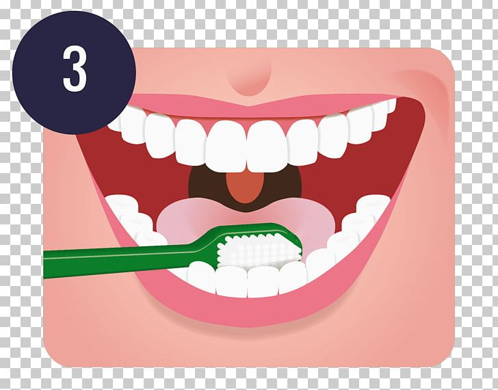 Tooth Brushing Dentistry Oral Hygiene Teeth Cleaning PNG, Clipart, Brush, Cheek, Dental Implant, Dentist, Dentistry Free PNG Download