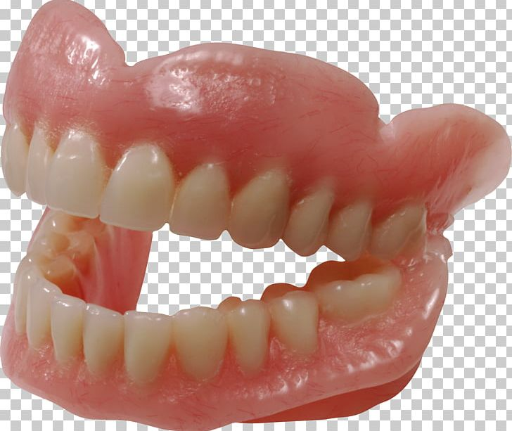 Dentures Dentistry Human Tooth Removable Partial Denture PNG, Clipart, Dentist, Dentistry, Dentures, Free, Gums Free PNG Download