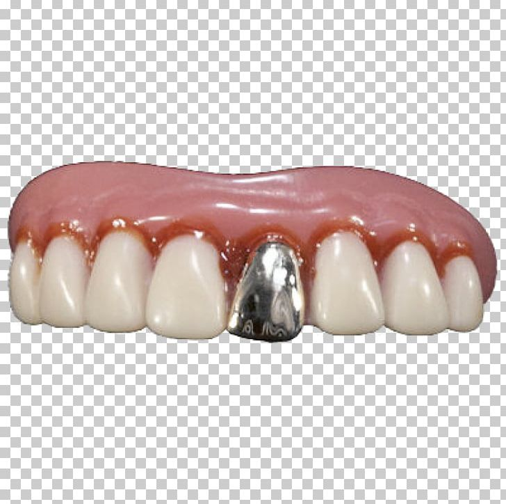 Human Tooth Dentures Gold Teeth PNG, Clipart, Cosmetic Dentistry, Deciduous Teeth, Dental Braces, Dentures, Gold Free PNG Download