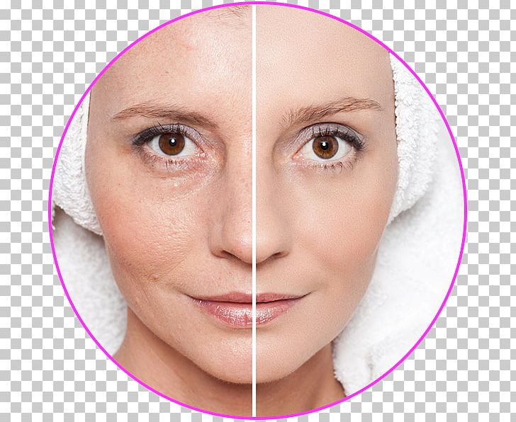 Geria Dermatology: Aanand Geria PNG, Clipart, Aesth