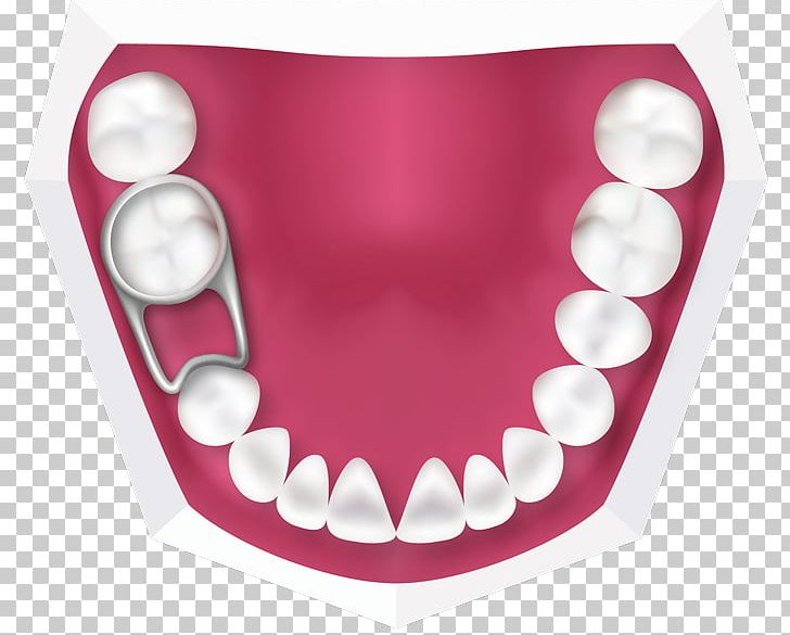 Tooth Deciduous Teeth Orthodontics Retainer Dentistry PNG, Clipart, Chewing, Child, Childrens, Deciduous Teeth, Dental Braces Free PNG Download
