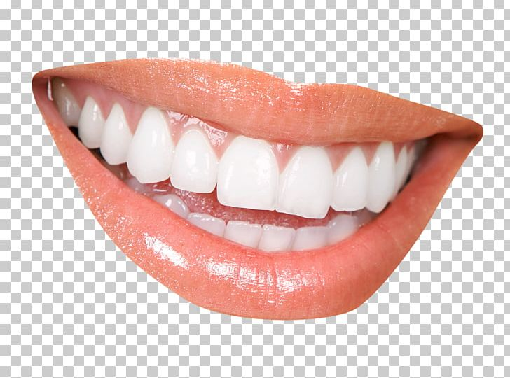Cosmetic Dentistry Clinic Periodontology PNG, Clipart, Clinic, Cosmetic Dentistry, Dental, Dental Braces, Dentist Free PNG Download