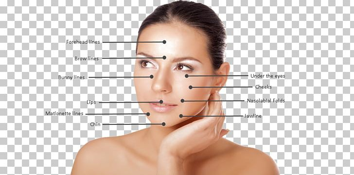 Injectable Filler Eyebrow Cheek Courtenay Cosmetic Clinic