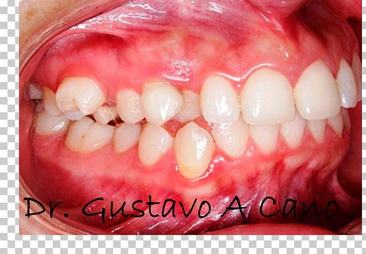 Tooth Maxillary First Molar Deciduous Teeth Eldgos PNG, Clipart, Backlink, Blog, Cosmetic Dentistry, Deciduous Teeth, Download Free PNG Download