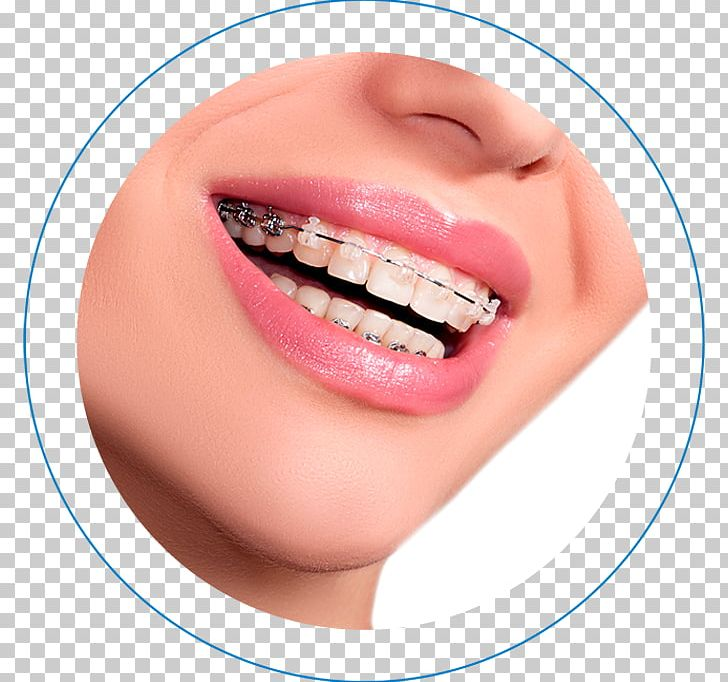 Dental Braces Orthodontics Clear Aligners Dentistry Self Ligating Bracket Png Clipart Cheek Chin Clear Aligners Closeup