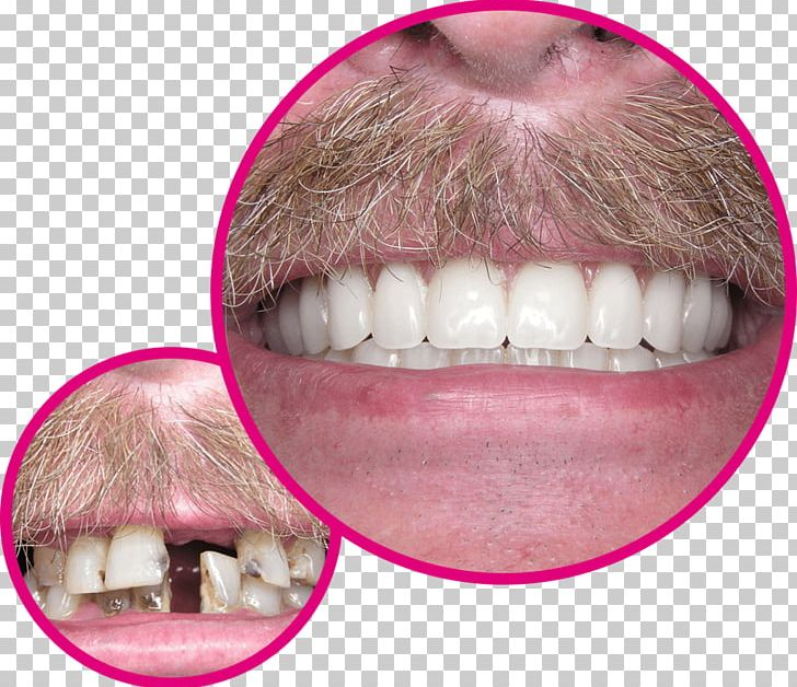 Human Tooth Dentures Dentist Implant PNG, Clipart, Closeup, Crown, Dental Fear, Dental Implant, Dentist Free PNG Download