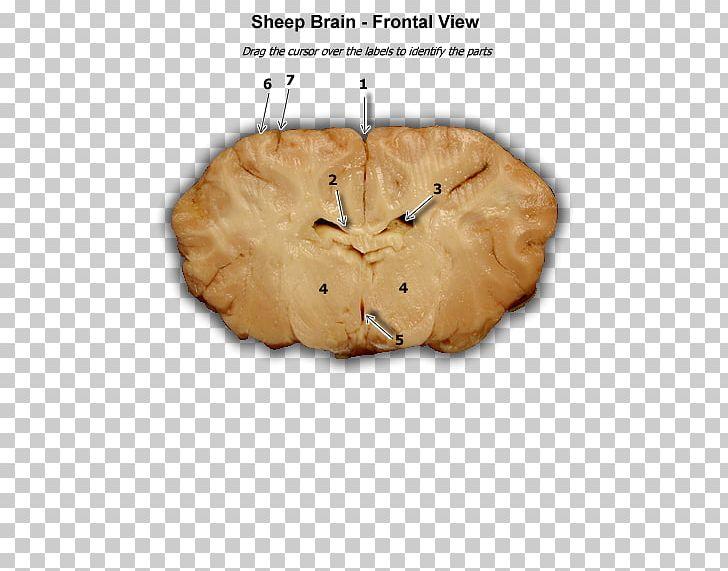 Human Brain Sheep Frontal Lobe Lobes Of The Brain PNG, Clipart, Anatomy, Brain, Cerebral Hemisphere, Child, Diagram Free PNG Download
