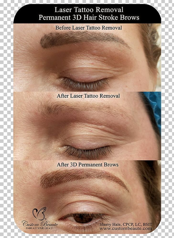 Eyebrow Tattoo Removal Permanent Makeup Laser PNG, Clipart, Cheek ...