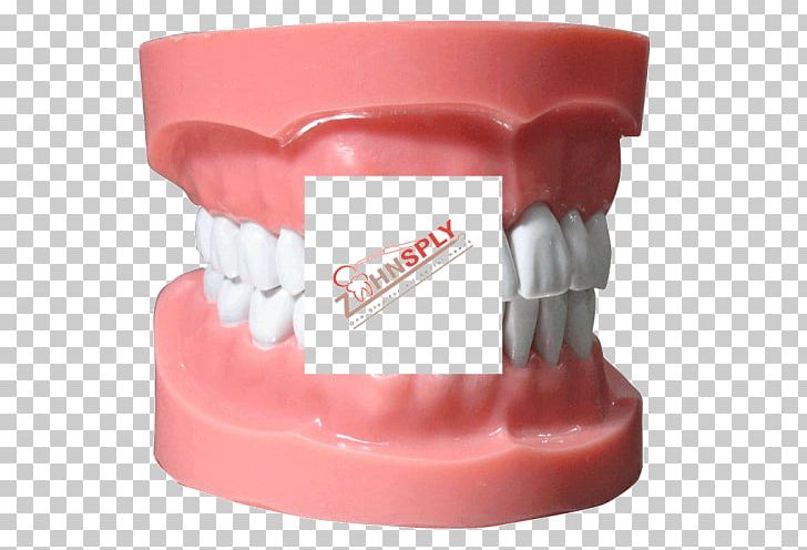 Human Tooth Typodont Dentistry Jaw PNG, Clipart, Dental Braces, Dental Implant, Dental Model, Dentistry, Health Free PNG Download