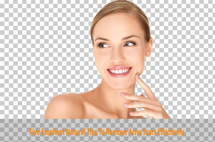 Face Cosmetics Beauty Injectable Filler Skin PNG, Clipart