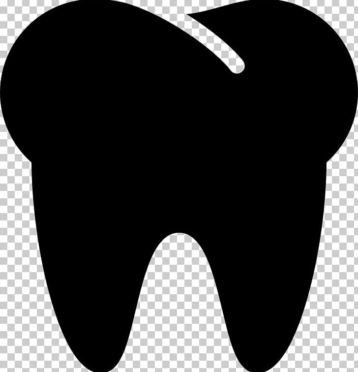 Human Tooth Dentistry Computer Icons PNG, Clipart, Black, Black And White, Computer Icons, Dentist, Dentistry Free PNG Download