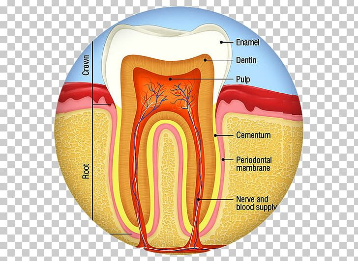 Human Tooth Dental Anatomy Tooth Decay Endodontic Therapy PNG, Clipart, Acid Erosion, Crown, Dental Anatomy, Dental Restoration, Dentin Free PNG Download