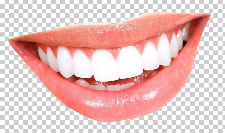 Smile Mouth Human Tooth Png Clipart Cartoon Smile Cosmetic Dentistry Crown Dental Braces Dentistry Free Png