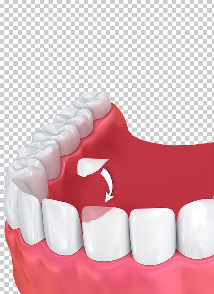 Human Tooth Dental Bonding Cosmetic Dentistry PNG, Clipart, Cosmetic Dentistry, Dental Bonding, Dental Implant, Dental Restoration, Dental Surgery Free PNG Download